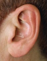 canal hearing aid available at UK Hearing Centres